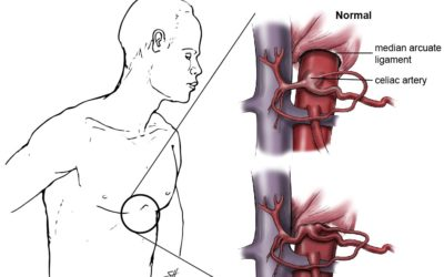 Median Arcuate Ligament Syndrome (MALS)