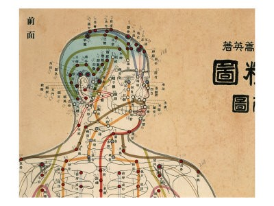 Traditional Chinese Medicine and Neurofibromas